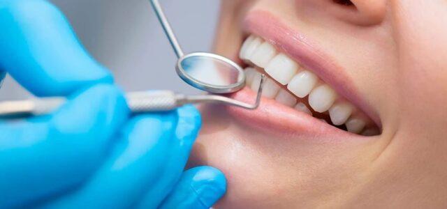 Ventajas de tener un seguro dental