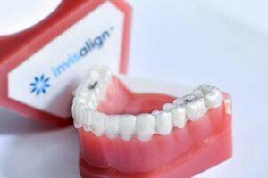 seguros dentales invisalign