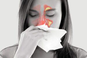Sinusitis por elevación de seno