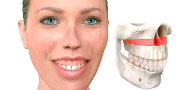 Sobrecrecimiento del maxilar