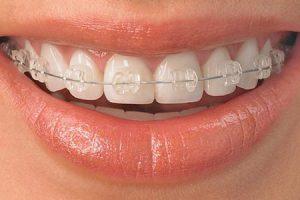 Tratamiento de ortodoncia con brackets