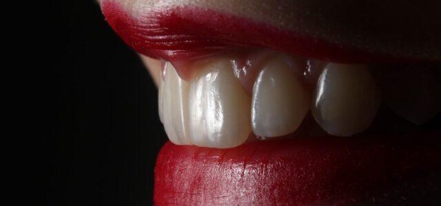 Carillas dentales de porcelana en incisivos