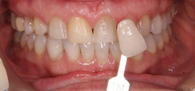 Carilla dental de porcelana