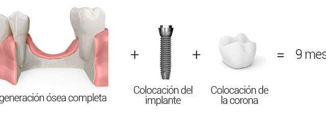 Alarga la colocación de implantes