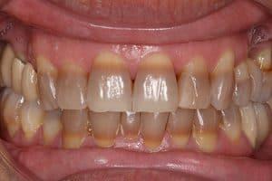Tratamiento para blanquear los dientes con tetraciclinas