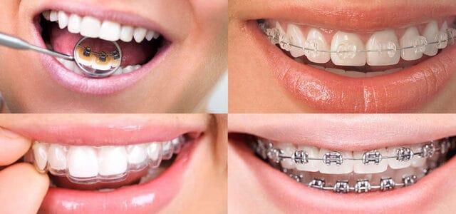 Como hablar con ortodoncia