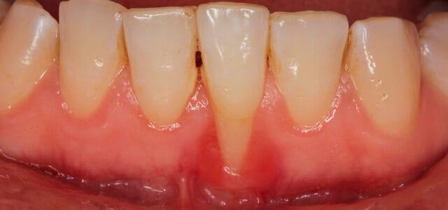 Raíz dental descubierta