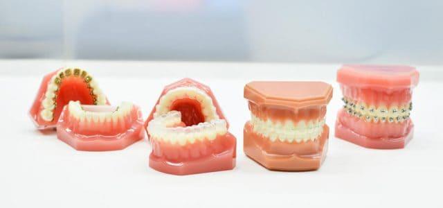 Clases de brackets dentales