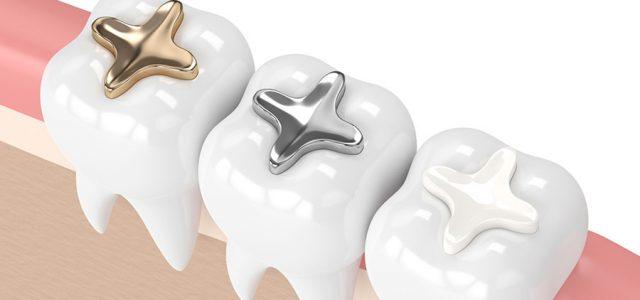 Materiales de una incrustación dental