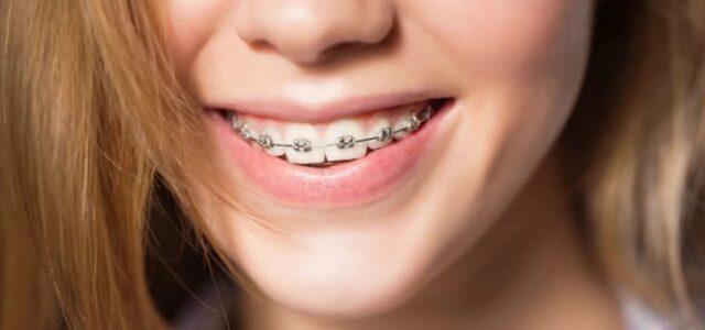 Tipos de ortodoncia para personas adultas