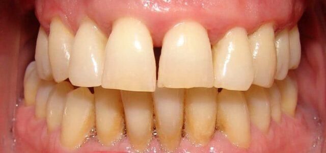Troneras en los dientes por periodontitis