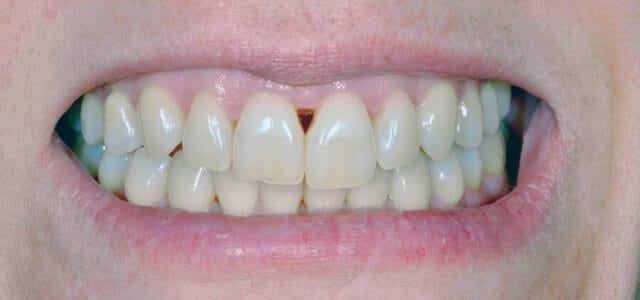 Troneras dentales