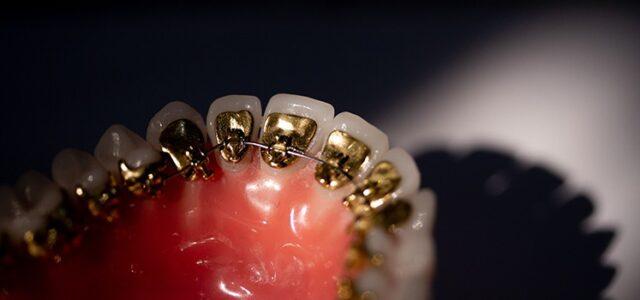 Método más estético de ortodoncia