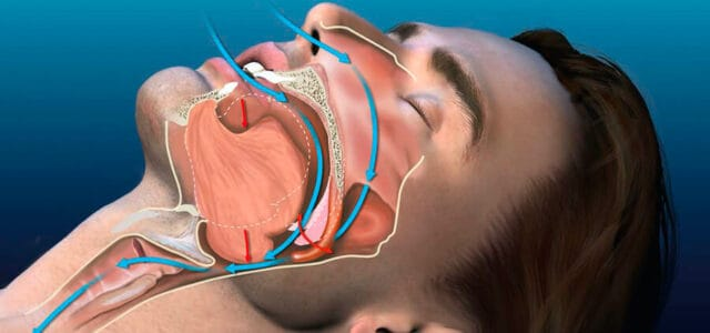 Obstrucción de las vías respiratorias